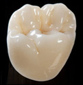 £25 off a Chameleon® Zirconia Layered Crown