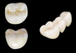 £10 off a Chameleon® Zirconia Monolithic Crown/Bridge/Inlay or Onlay